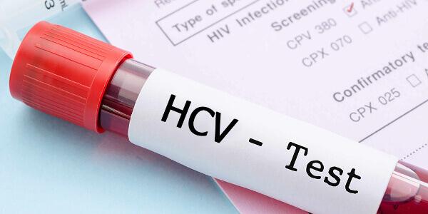 Тест на антитела к гепатиту С