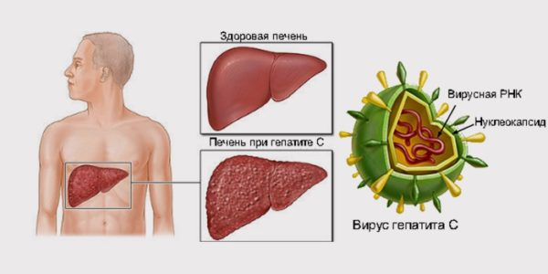 Как гепатит С влияет на печень