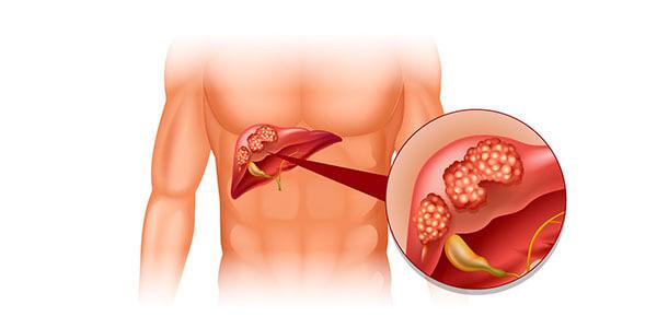 Осложнения после гепатита