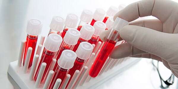 Количественный анализ крови